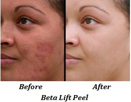 Beta Lift Peel (before and after)