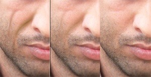 Liquid Injectable Silicone and Facial Lipoatrophy