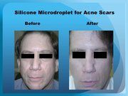 Silicone Microdroplet for Acne Scars
