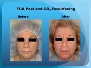 TCA Peel and CO2 Resurfacing