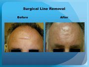 Surgical Line Removal