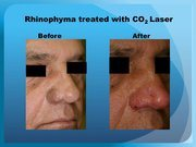 Rhinophyma treated with CO2 Laser