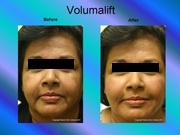 Volumalift Charran Full Face