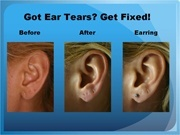 Got Ear Tears, Get Fixed