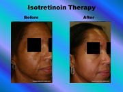 Isotretinoin Therapy