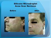 Silicone Microdroplet Acne Scar Revision