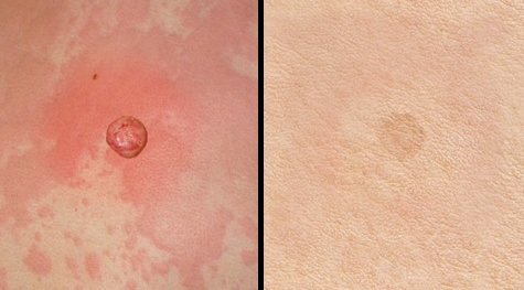 Laser treatment for vascular lesions (before and after)