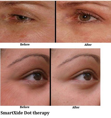 SmartXide Dot: Facial Resurfacing
