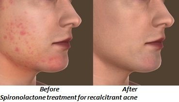 Spironolactone Therapy for Recalcitrant Acne