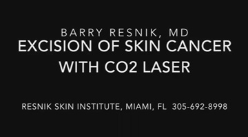Excision of a Squamous Cell Carcinoma with CO2 laser