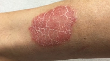 Treatment of psoriasis with injected cortisone