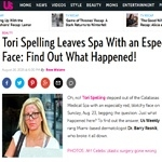 Tori Spelling Leaves Spa With an Especially Red, Splotchy Face: Find Out What Happened!